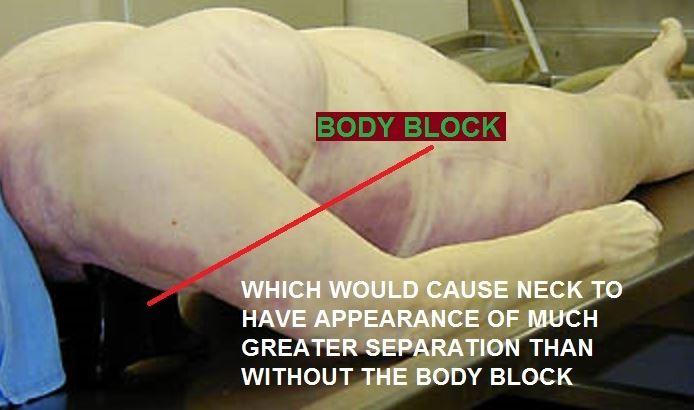body block